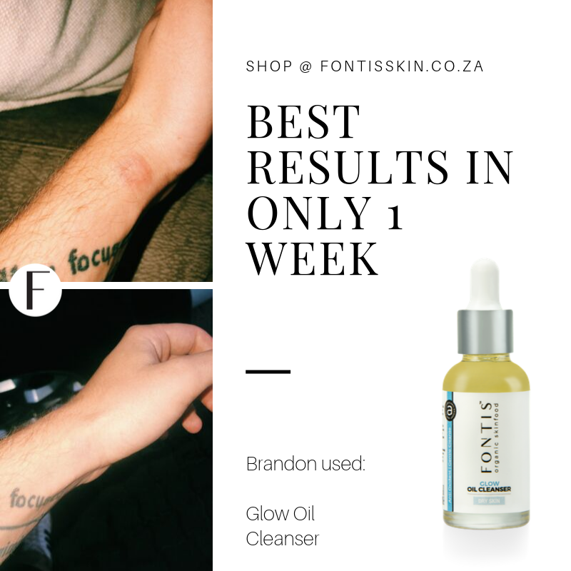 Brandon has been using_ Exuberance Nectar & Glow Oil Cleanserfor 34 days (1)